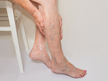 Venous Sclerotherapy