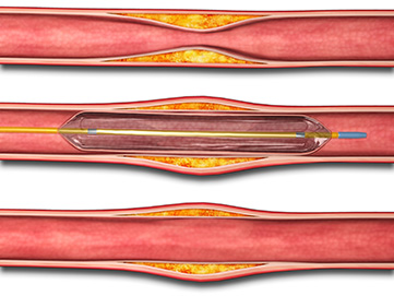 Interventional Catheterization Procedure