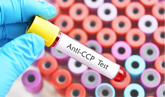 Anti-CCP Test