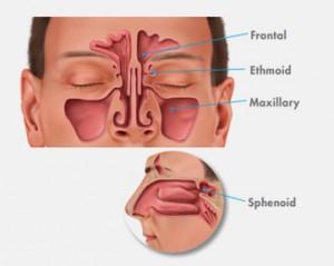 Paranasal Sinuses Goshen NY